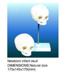 Newborn infant skull