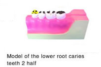 root caries teeth
