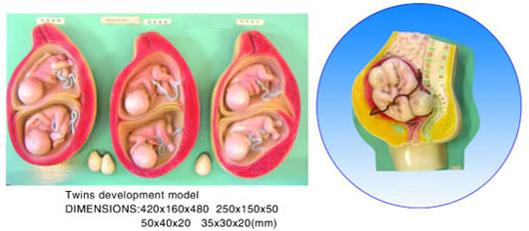 Twins development model