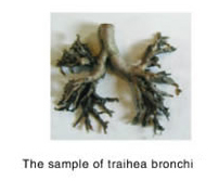 trachea bronchi
