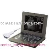 Palm-size Ultrasound scanner
