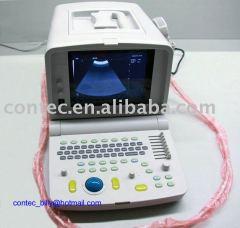 Portable Ultrasound Scanner----CE Approved Ultrasound Machine