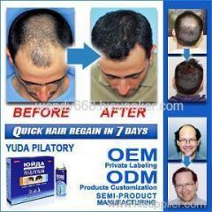 yuda hair loss treatment