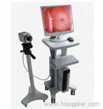 video colposcope