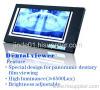 Dental equipment: Dental viewer