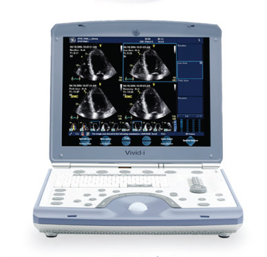 GE Vivid i Ultrasound Machines, CCE Medical Equipment, ultrasound, used ultrasound, refurbished ultrasound, ultra sound, ultrasound used, ultrasound machine, ultrasound machines, ultrasound equipment, ultrasound probes, ultrasound transducers, doppler, color doppler, colour doppler, diagnostic imaging, recondition ultrasound, PureWave transducer technology, diagnostic ultrasound systems, sell ultrasound equipment, buy ultrasound equipment, supplier ultrasound equipment, Transducers, scans, supplier pre-owned ultrasound equipment, supplier refurbished ultrasound equipment, supplier reconditioned ultrasound equipment, export ultrasound equipment, specialize ultrasound, ultrasound applications, upgrade ultrasound equipment, ultrasound supplies, diagnostic equipment, DICOM, abdominal, 4D, 3D, 2D, beamforming, obstetric, portable, console, monitor, transvaginal, dealer, refurbished, refurbished medical equipment, PureWave Crystal Technology, medical equipment, elastoscan, Advanced XRES, ultrasound parts, used medical equipment, portable cardiovascular, used ultrasound parts, refurbished ultrasound parts, used ultrasound imaging systems, quality used ultrasound equipment, SonoCT, transducers used, used transducers, used probes, probes, ultrasound accessories, ultrasound peripherals, used ultrasound accessories, used ultrasound peripherals, pre-owned ultrasound, ultrasound gel, reconditioned ultrasound, USB ports, cardiology ultrasound, cardiovascular ultrasound, vascular ultrasound, color ultrasound, colour ultrasound, obstetrics, gynecology, OB/GYN, OB/GYN ultrasound, ATL, Toshiba, Diasonics, iSCAN image optimization, Acuson, HP, HDI, Aloka, GE, Phillips, Siemens, Medison, Ultramark, PACS, medical grade VCR,low prices, best prices, ultrasound service, ultrasound repair, service contracts, fetal ultrasound, sony medical printers,medical printers, TGC, LED, sony printer paper, abdominal, obstetric, dealer, convex, linear, sector, mechanical, phased array, QLAB, vaginal, rectal, tee, repair ultrasound equipment, repair transducers, repair probes, ultrasound leasing, Spatio-Temporal Image Correlation, STIC, ultrasound preventative maintenance, QLAB Quantification Software, cardiac ultrasound, radiology, Canada, Canadian, Toronto, Mississauga, black white ultrasound, B/W ultrasound, second hand ultrasound, 3D imaging, 3D software, 3d, 4d ultrasound equipment, used, new, toronto, ontario, world wide, beamformer, sales, ultrasound machines, workflow, philips, phillips, samsung, toshiba, GE, Diagnostic Imaging Machines, Diagnostic ImagingSystems, Ultrasound Service and Repair, Ultrasound Service, Ultrasound Repair, Ultrasound Equipment, High Quality Ultrasounds, Ultrasound Equipment, CA Ultrasound Service, Canada Ultrasound Service, Pennsylvania Ultrasound, Canada Ultrasound, Canada Used Ultrasound, Canada Ultrasound Company, Canada Ultrasound Equipment, CA Ultrasound Service, Canada Ultrasound Service, Canada Ultrasound, CA ULtrasound, Canada Used Ultrasound, Canada Ultrasound Company, Manufacturers Specialties Product Types ultrasound equipment, ultrasound machines, demo machines, ultrasound systems for sale, portable ultrasound systems, ultrasound service, ultrasound repair, ultrasound parts, ultrasound probes, transducer parts  , GE ultrasound equipment, toshiba ultrasound equipment, atl ultrasound equipment, philips ultrasound equipment, siemens ultrasound equipment, Therapeutic Ultrasound, Physiotherapy Ultrasound, home healthcare ultrasound, chattanooga intelect ultrasound, dynatronic ultrasound, gel, parker gel, physio, therapy, cold, hot, sombra, bioskin, bio, skin, mueller, biofeeze, ice, pack, weights, resistance, resistence, band, bands, exercise, chiro, chiropractor, chiropractic, clincal, clinic, Ultrasound ge-logiq- Machines, New, Used, Pre-owned Ultrasound Machines, Systems, Diagnostic Imaging Systems Canada, CCE Medical & Samsung Sonography Conference, Sonography and Diagnostic Imaging Machines, Sonography and Diagnostic Imaging Systems, Sonography and Diagnostic Imaging Canada, Sonography and Diagnostic Imaging Machines World Wide and International Sales, Sonography and Diagnostic Imaging Systems World WIde and International Sales and Service