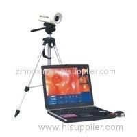 Digital Laptop Colposcope Work Station
