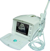 Portable Ultrasound Scanner OSEN600