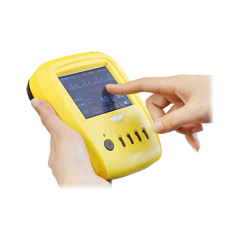 Portable Palm patient monitor