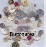 Shell Button,Agoya,River Shell Button