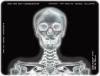 medical film for medical diagnostic