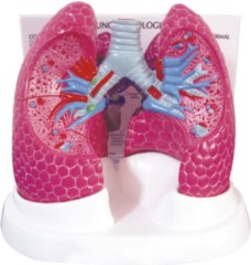 Lung Model with Bronchopulmonary Pathology