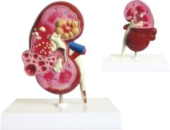 Dissection Model of Kidney with Cyst