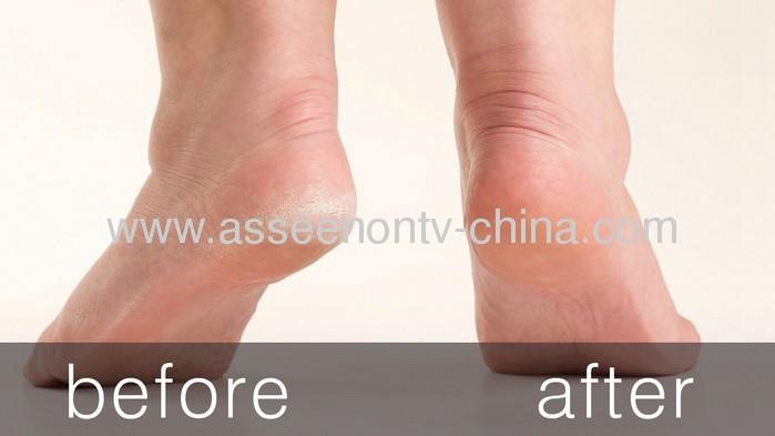 heel smoother / healthy heel / Exfoliating