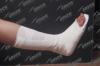 Orthopedic fiberglass Splint AX315