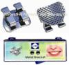 Orthodontic Metal Bracket 80 meshes base bondable