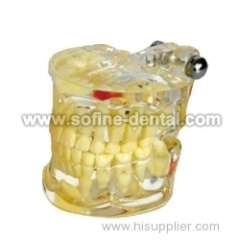 the Dental Teaching Model SF-DE-9010-3