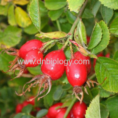 Rose hips P.E.Rose hips plant Rose hips Extract