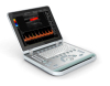 Laptop digital color doppler ultrasound
