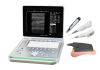 Laptop digital ultrasound Scanner