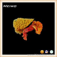 Liver pancreas and duodenum casting specimens