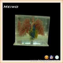 heart lung vascular casting specimens