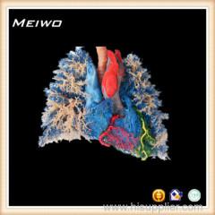 Heart -lung vascular casting specimens