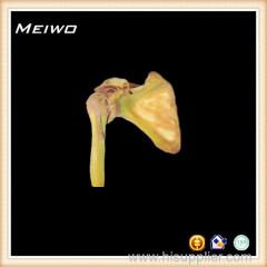 Shoulder joint plastineted specimens