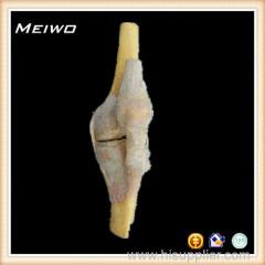 Knee joint preserved specimens for sale