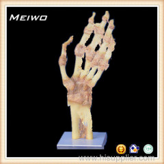 Joint of hand plastinated organ