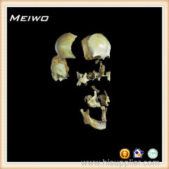 Separation of the skull bone human skull bone