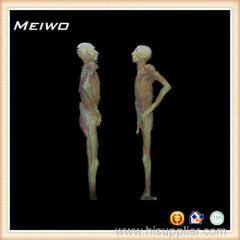 Face to face posture process of plastination