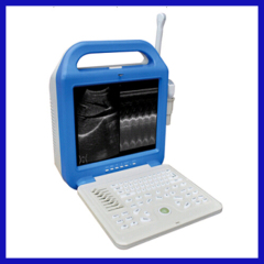Digital Laptop Ultrasonic Diagnosis Equipment for veterinary