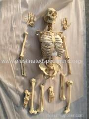Bones of the whole body disarticulated human skeletons