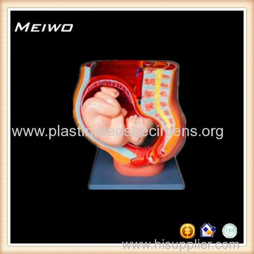 Anatomy of pregnant abdomen