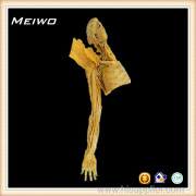 Difference between medical mdoel and plastinated specimens