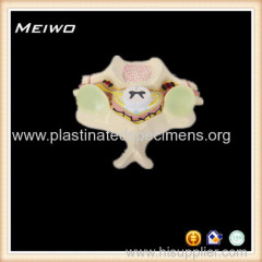 spinal cord and spinal nerve 3d anatomy models