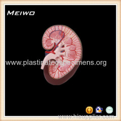 kidney section anatomy models for sale