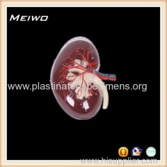 transparent kidney cheap anatomy models