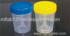 Stool Container/ specimen container