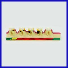 hopital artificial acrylic teeth