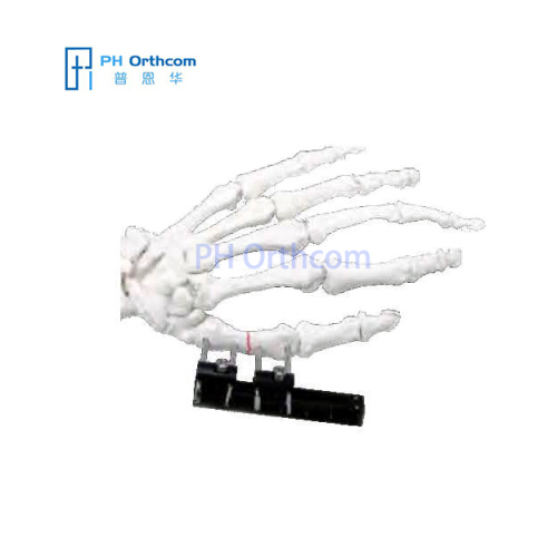 Standard MiniRail Fixator Orthofix Type Mini Fragements Fixator Trauma Orthopaedic