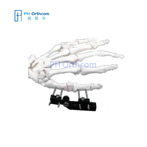 MiniRail Fixator Articulation in Horizontal Axis Orthofix Type Mini Fragments Finger Fixator Trauma Orthopedic