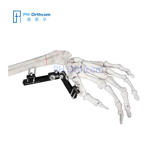Multiplanar Minirail External Fixator Orthofix Type Mini Fragement Finger External Fixator Trauma Orthopaedic