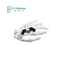 Пенинг мини Exteranal фиксатор С Л-зажим Orthofix системы мини фрагмента палец внешних фиксаторов травмы ортопедические