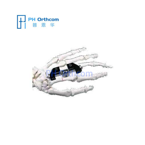 Penning Mini External Fixator with L-Clamp Orthofix System Mini Fragment Finger External Fixation Trauma Orthopedic