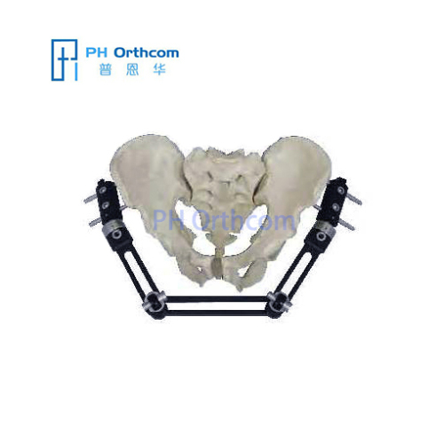Long Pelvic External Fixator with ProCallus Straight Clamps Orthofix Type Orthopedic