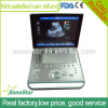 C5 Sonostar 4D portable ultrasound diagnostic devices portable ultrasound equipment