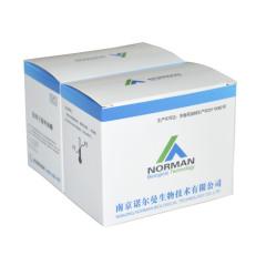 PCT procalcitonin chemiluminescence immunoassay