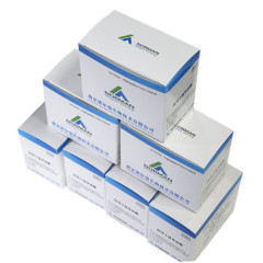 Rapid read NGAL test kits